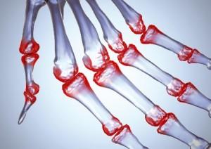 sveikata-artritas